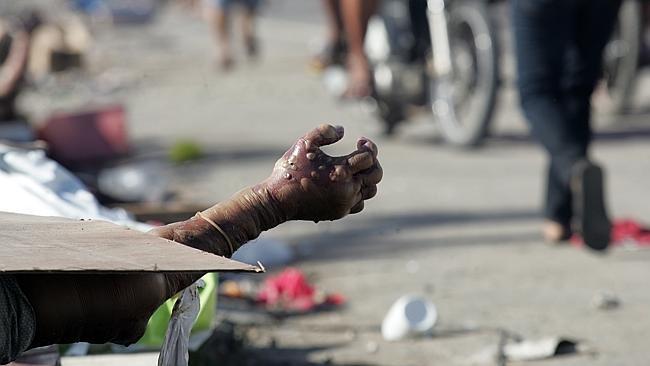 "Tacloban Disaster after ""super-typhoon"""