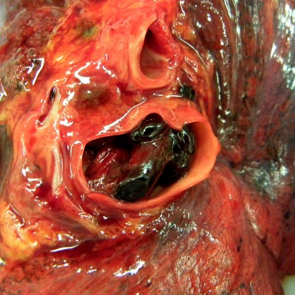 Pulmonary_embolus